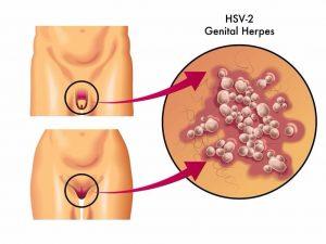 pengobatan herpes simplex di bekasi